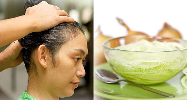 Cách trị rụng tóc từ hành tây hiệu quả cực nhanh