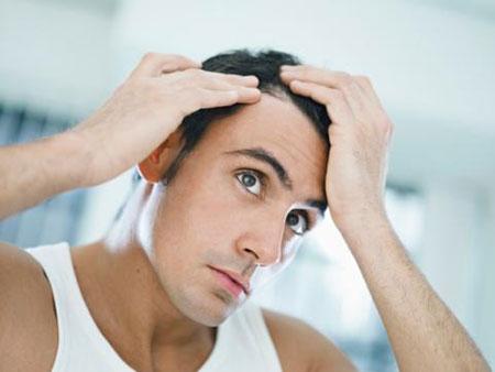 Kết quả hình ảnh cho rụng tóc spa nam