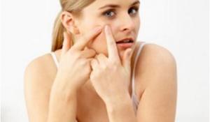 Công thức trị dứt điểm mụn cho da hiệu quả nhanh chóng chỉ sau 1 tuần