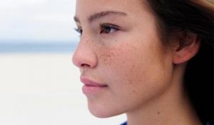 Cách làm trị dứt điểm các vết nám da hiệu quả chỉ sau 1 tuần