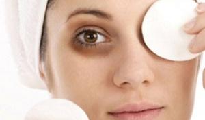 Những cách làm nhanh trị dứt điểm thâm quầng mắt từ dưa leo