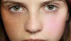 Nám da và những điều bạn cần phải biết khi trị nám da