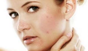 Hướng dẫn cách chăm sóc đặc biệt dành cho làn da mụn