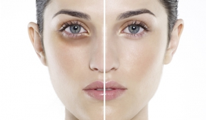 Thâm quầng mắt- Nguyên nhân và cách chữa trị