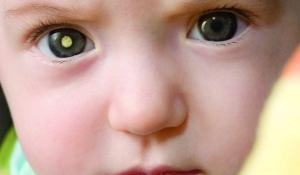 Những căn bệnh gây nên thâm quầng mắt ở trẻ nhỏ