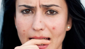 Mẹo trị thâm mụn hiệu quả tại nhà