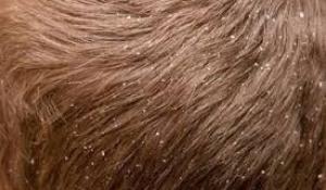 Trị nấm da đầu bằng thảo dược thiên nhiên vô cùng hiệu quả